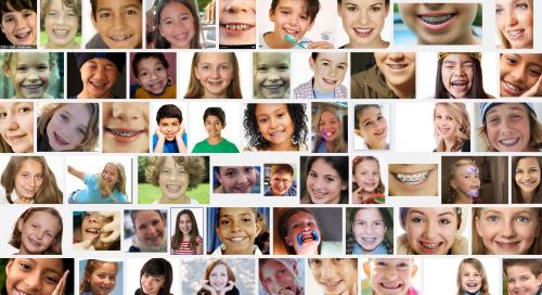 google-braces